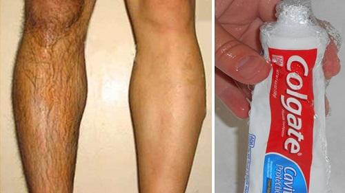 tẩy lông chân tại nhà bằng kem đánh răng